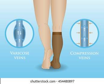 Medical compression hosiery for slender female feet, socks.