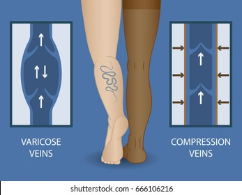 Medical compression stockings for the treatment of varicose veins. Medical hosiery.