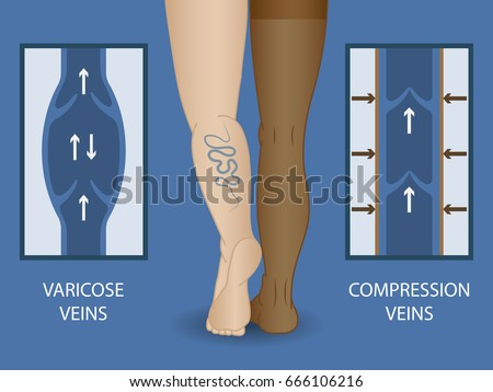 a213967bd4 Medical compression stockings for the treatment of varicose veins. Medical  hosiery.