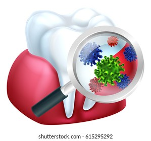 A medical dental illustration of bacteria on a tooth and gum being magnified