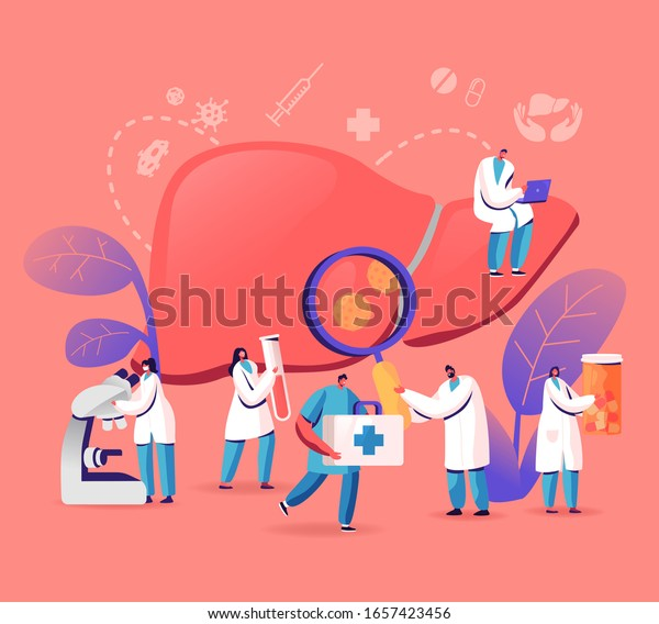 Medical Diagnosis, Hepatitis A, B, C, D World Day, Cirrhosis Concept, Tiny Doctors Taking Care of Patient Diseased Liver, Health Care, Cancer Awareness, Treatment. Cartoon Flat Vector Illustration