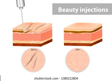 Medical illustration of Beauty injections  for wrinkles. Layers of skin with neurotoxin injection.