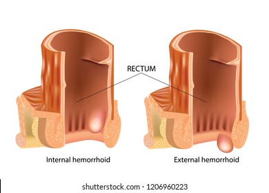 Medical illustration showing internal and external hemorrhoids. Types of Hemorrhoids. Hemorrhoids, also called piles, are vascular structures in the anal canal.
