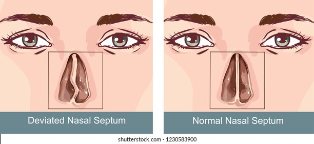 medical illustration of the symptoms of a deviated nasal septum
