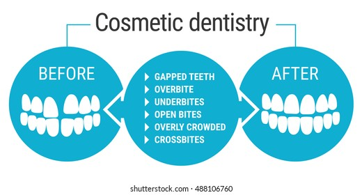 Medical infografics: Dental services. Cosmetic dentist before and after. Dental design over white background vector illustration