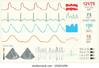 Medical monitor with data set. Possible professional use. Vector illustration