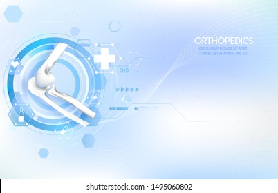Medical orthopedic abstract background. Treatment for orthopedics traumatology of elbow bones and joints injury. Medical presentation, hospital. Vector illustration