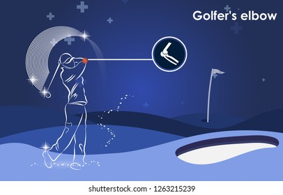 "Medical orthopedic. Human silhouette in golf motion,""Golfer's elbow"" bones and joints. Vector flat design for radiology orthopedic, hospital, joint, sport medicine, diagnostics. Vector illustration"