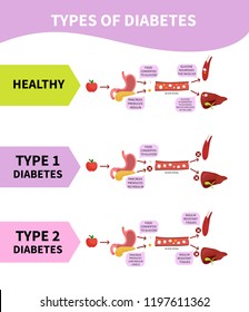 Medical scheme types of diabetes.