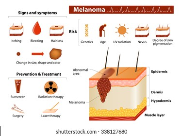 Melanoma. Skin cancer infographics. Medical Infographic set with icons and other elements.