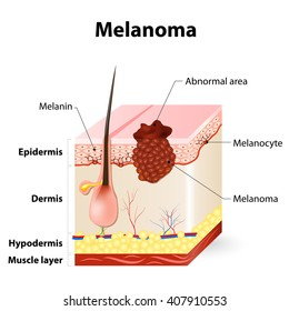 Melanoma or skin cancer. layers of the human skin.