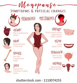 Menopause symptoms and physical changes. Vector illustration with useful facts isolated on a white background. Scientific, educational and popular-scientific concept. WOmen health poster.