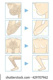 Men's Beauty depilation (parts of bodyA)
