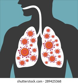 MERS-CoV(Middle East respiratory syndrome coronavirus).- Vector illustration