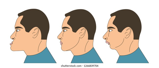 Mesial and distral bite, man with malocclusion, lower jaw extended forward, lower jaw pushed back, bite correction by braces. Vector illustration