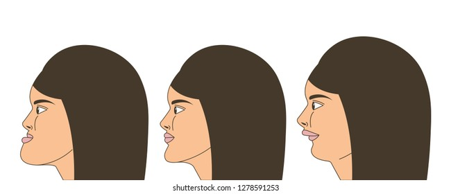 Mesial and distral bite, woman with malocclusion, lower jaw extended forward, lower jaw pushed back, bite correction by braces. Vector illustration