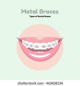 Metal Dental Braces. Types of Dental Braces. Vector flat illustration of smile with braces on the teeth.