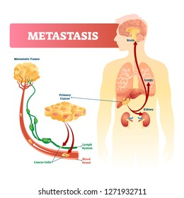 Metastasis vector illustration. Primary cancer and tumor labeled diagram. Isolated internal infected organs scheme and cells transport by lymph system and blood vessels. Educational health infographic