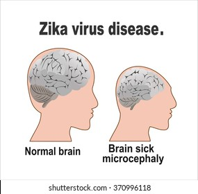 Microcephaly or Abnormal Smallness of the Head Concept. The Zika Fever Virus is linked to microcephaly birth defect cases from pregnant women bitten by Aedes aegypti mosquitoes.