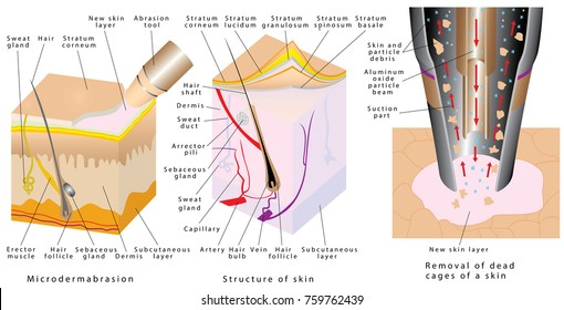 Microdermabrasion - Diamond Dermabrasion. Diamond dermabrasion - procedure repair  facial skin. Removal of dead cages of a skin. Mechanical peeling skin. Cross-section of a skin layers