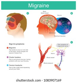 Migraine. Headache, pain, tend cooccur on one side of the head