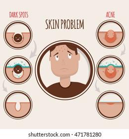 Modern vector illustration of skin problems. Dark dots, acne. Face care.