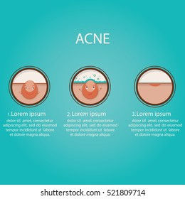 Modern vector illustration of skin problems. Dark dots, acne. Face care. Template for website.