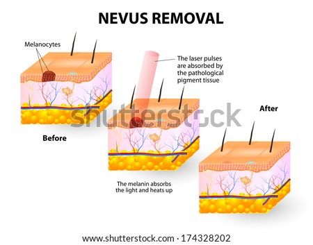 moles spots can be removed lasers stock vector royalty. Black Bedroom Furniture Sets. Home Design Ideas