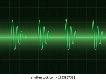 Monitor heart beats cardiogram loop on green graph screen background, medical and science vector design concept