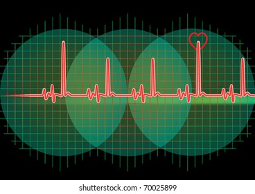 Monitor with red heart beat and graph