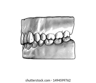 Monochrome vintage engraving drawing tooth and gum close jaw represent for dental occlusion side view illustration isolated on white background