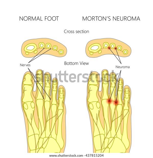 Mortons Neurorom mit Querschnitt.  Verwendet: Farbverlauf, Mischmodus.