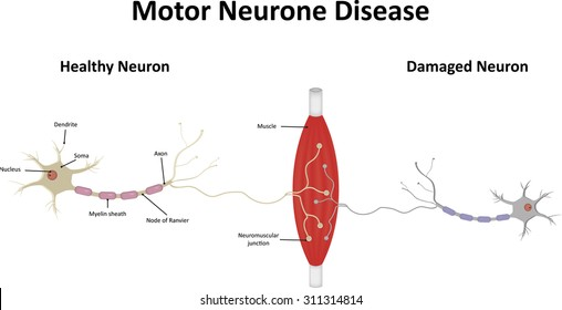Motor neuron images stock photos vectors shutterstock ccuart