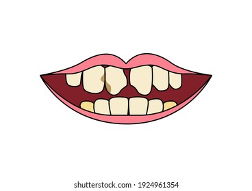 Mouth showing yellow teeth and cavities on blue background. dental plaque, mouth icon, Vector illustration.