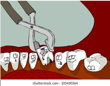 In the mouth, teeth look that one of them pulls out a pair of pliers