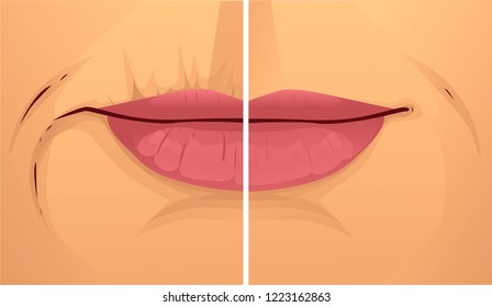 Mouth wrinkles, before-after. Vector illustration.