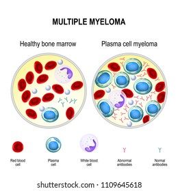 Multiple myeloma is a cancer of the bone marrow. healthy plasma cells in the bone marrow mutate and multiply uncontrollably. Myeloma cells suppress the growth of healthy cells that make blood