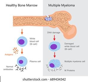 Multiple Myeloma Diagram. Vector illustration design
