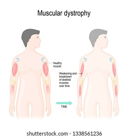 Muscular dystrophy is a muscle diseases that results in weakening and breakdown of skeletal muscles over time. Vector illustration for educational, science and medical use