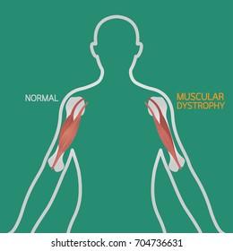 Muscular dystrophy vector illustration