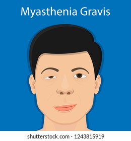 Myasthenia gravis (MG) disease treatment diagnosis testing bell palsy