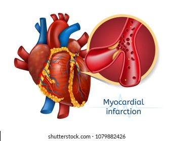 Myocardial infarction. 3d Realostic Illustration of Human Heart with Blocked Coronary Artery. Vector Plaque Heart Attack