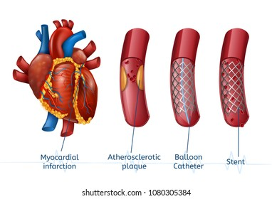 Myocardial infarction. 3d Realostic Stent in Illustration of Human Heart with Blocked Coronary Artery. Vector Plaque Heart Attack. Angioplasty.