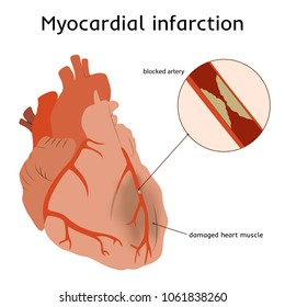 Myocardial infarction. Heart attack. Blocked artery, damaged heart muscle. Anatomy flat illustration. Red image, white background.
