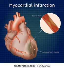 Myocardial infarction. Heart attack. Blocked artery, damaged heart muscle. Anatomy illustration. Red image, dark blue science background.