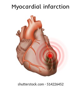 Myocardial infarction. Heart attack, pain. Damaged heart muscle. Anatomy illustration. Red image, white background.