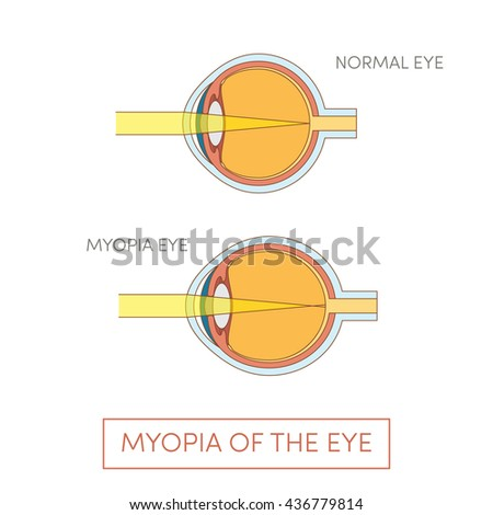 Myopia Eye Vector Illustration Stock Vector Royalty Free 436779814