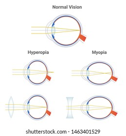 Myopia, hyperopia and normal vision. Common vision disorders. Short sightedness, far sightedness and corrected eye by plus positive lens and minus negative lens. Icons with focusing of light isolated.