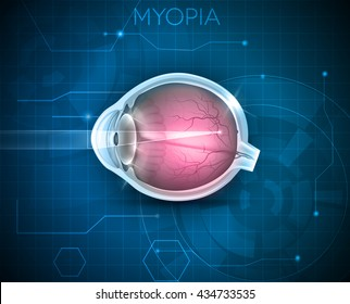 Myopia, vision disorder on a blue technology background. Being short sighted (near sighted), far away object seems blurry.