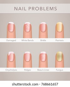 nail problems and illness, vector poster